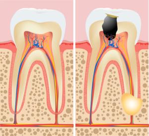 endodontie 03