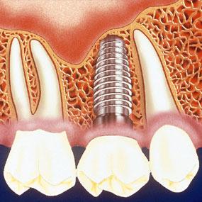 implant dentar 12