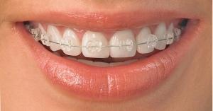 ortodontie 05
