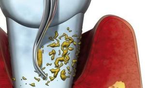 parodontolgie 03